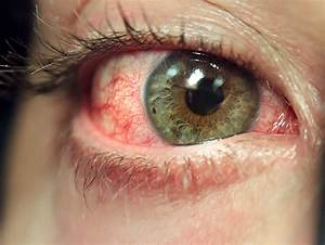 drugs, eye, green, red, red eyes, res - image #87615 on ...