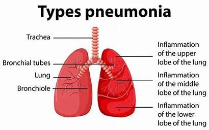 Pneumonia Diagram Types Showing Vector Related Non