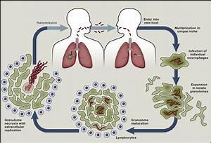 TB, Our Modern-day Scourge – Dr Fundile Nyati