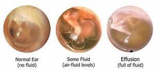 otoscope dull tympanic membrane - Google Search | Fluid in ...