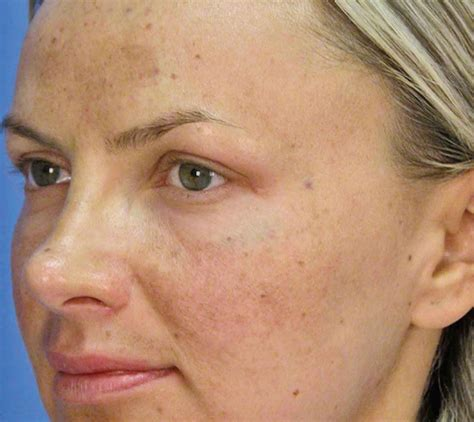 laser skin treatment for sun spots age spots acne scarring or discoloration