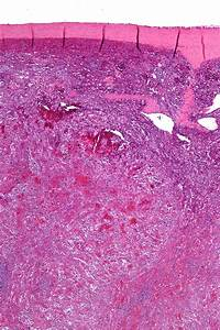 Littoral Cell Angioma