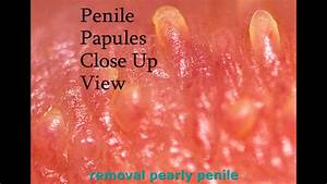 PPP Removal Nomorepapules How I Was Cured of Pearly Penile ...