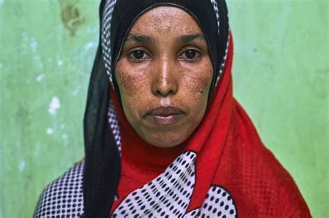 The Heartbreaking Life Of Somali Refugee Women In