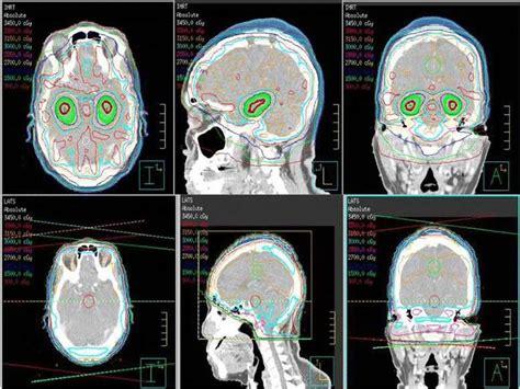 tailored radiation  brain metastases reduces cognitive