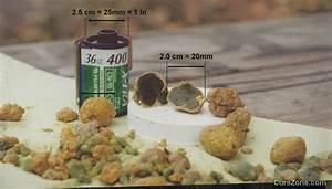 Как вылечить печень и желчный пузырь лекарства