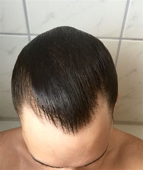 finasteride shedding 7 months buy tretinoin nz