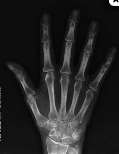 rheumatoid arthritis  ray wikidoc
