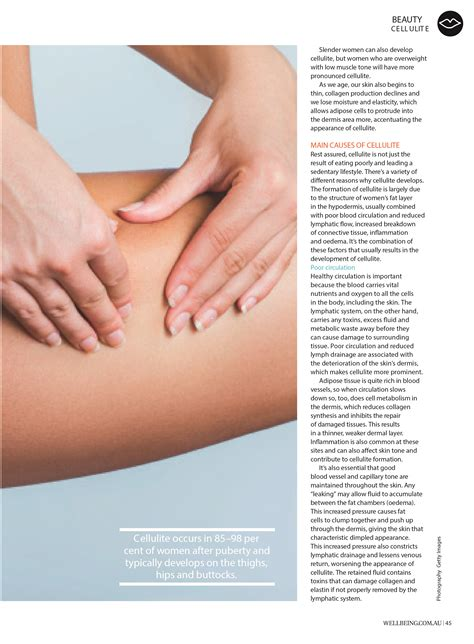 Smoothing The Bumps Natural Treatments To Prevent Or