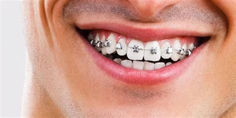 feste zahnspangen erwachsene kfo praxis dr doerfer