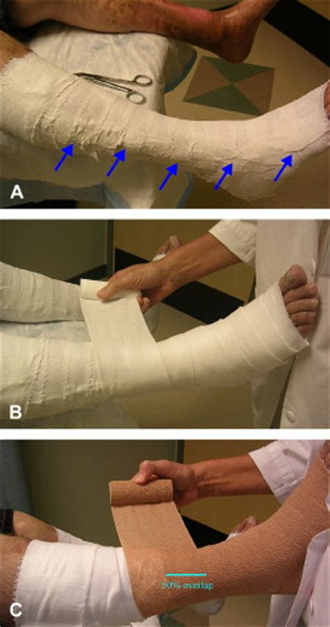 treating  chronic wound  practical approach
