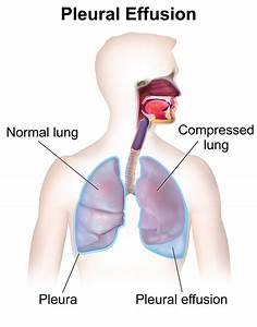 Difference Between Pleural Effusion And Pneumonia L