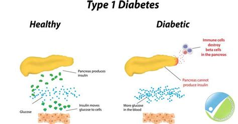 diabetes types symptoms  diagnosis treatments