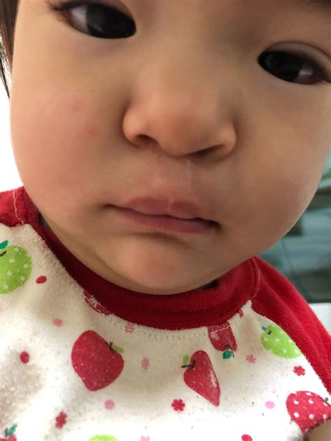 口唇 口蓋 裂