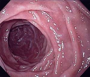 Endoscopy Of The Stomach By Dr  David A  Kloss
