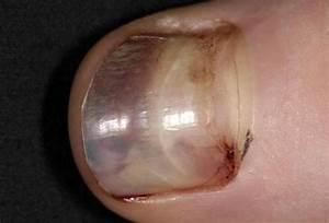 Грибок ногтей заговорить