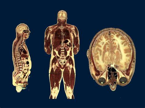 Haz tu selección entre imágenes premium sobre bone cross section de la más alta calidad. Tufts University Division of Medical Education