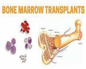Cord blood outperforms matched unrelated donor in bone ...