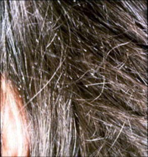 lente cheveux