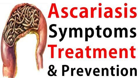 Ascariasis Treatment