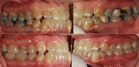 Ja Makin Me Sherman Tx by Testimonials Sherman Tx Dentist Dr Shoemaker