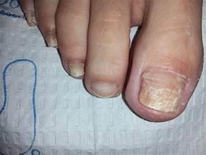 Как лечить грибок ногтей мочевиной