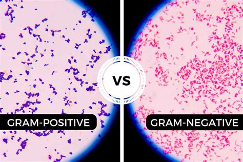 gram negative stain color difference between gram positive and gram negative bacteria