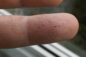 Грибки на пальцах ног у ребенка