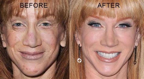kathy griffin surgery plastic before