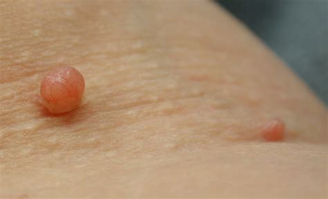 Skin Tag Removal Just Another Wordpresscom Site