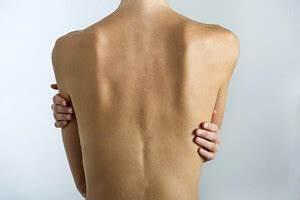 Псориаз признаки заболевания и его лечение