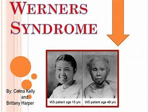 Werners Syndrome