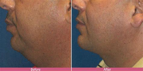 liposuction seattle facelifts bellevue facelifts