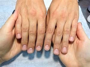 Трескается кожа на пальцах при псориазе