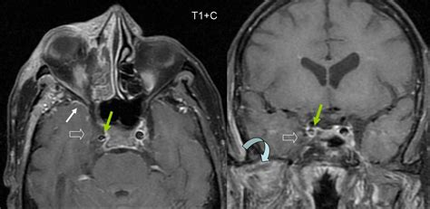 cavernous sinus thrombosis  symptoms treatment