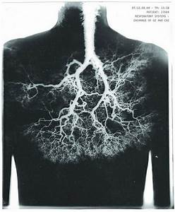 Lungs Look Like A Fractal Tree Inside Of Us   Psychonaut