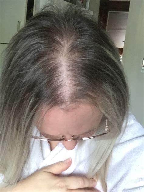 Women's ROGAINE® Foam 5% reviews in Hair Care - ChickAdvisor