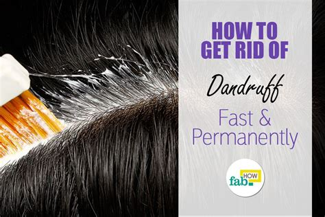 How to Get Rid of Dandruff | Fab How