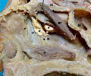 13 Middle Meatus And Lacrimal Duct  Fp Frontal Process  Ld Lacrimal