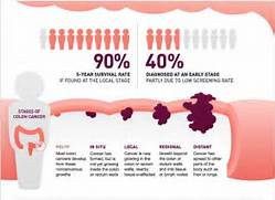 Source  Cancer org  Co...Colon Cancer Stages And Treatment