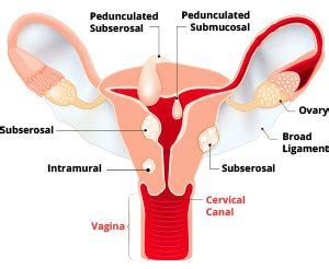 Hysterectomies - Removal of the Uterus Complications ...