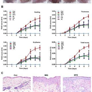 paeonol exerts improvement  imiquimod imq induced