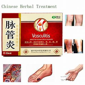 Herbal Medicine Patches Cure Spider Veins Varicose Treatment
