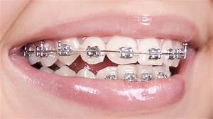 silver braces | Braces Colors | Pinterest | Braces colors