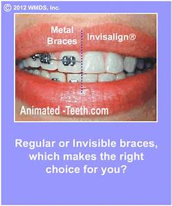 Advantages of removable braces-Invisalign|ClearCorrect ...