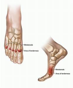 Metatarsalgia Specialist San Diego | San Diego Injury Clinic