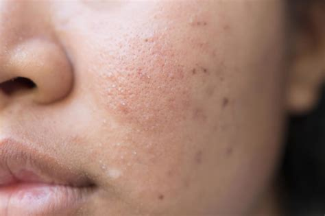 Light Therapy Targeted Acne Spot Treatment