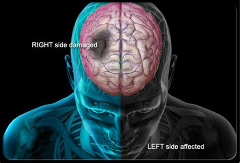 Patient Resources Stroke  Science Of Neurointervention. Gula Darah Signs. Kids Signs Of Stroke. Retina Signs. Bottle Opener Signs. Promotion Signs Of Stroke. Issn 2328 Signs. Kuru Signs. Lights Camera Action Signs