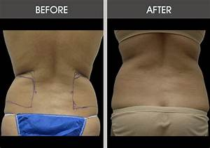 Liposuction Love Handles Before & After Gallery | Dr. Selem