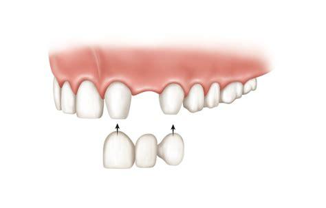 implants  dentures bridges implants  dentures